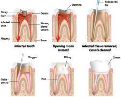 Root canal treatments Ormeau