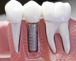 Dental implants Ormeau