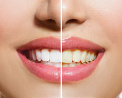 Teeth Whitening Ormeau